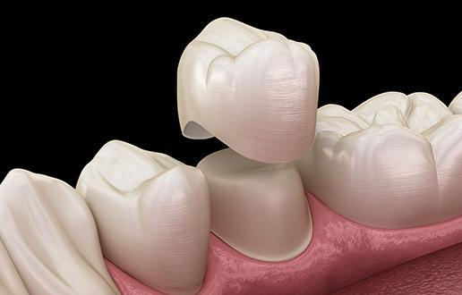 prothèse dentaire Inlay core à Pantin